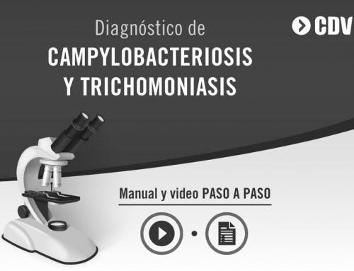 INSTRUCTIVO DE TOMA DE MUESTRA: Campylobacteriosis y Trichomoniasis